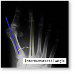 http://www.mdmercy.com/footandankle/conditions/bigtoe/images/valgus_bunion_3.jpg