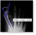 http://www.mdmercy.com/footandankle/conditions/bigtoe/images/valgus_bunion_4.jpg