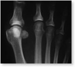 http://www.mdmercy.com/footandankle/conditions/bigtoe/images/osteotomy.jpg