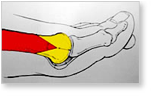 http://www.mdmercy.com/footandankle/conditions/bigtoe/images/valgus_bunion_6.jpg