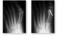 http://www.mdmercy.com/footandankle/conditions/bigtoe/images/valgus_bunion_8_9.jpg