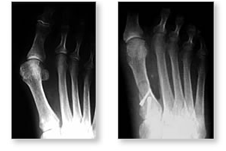 http://www.mdmercy.com/footandankle/conditions/bigtoe/images/valgus_bunion_11_12.jpg