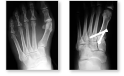 http://www.mdmercy.com/footandankle/conditions/bigtoe/images/valgus_bunion_16_17.jpg