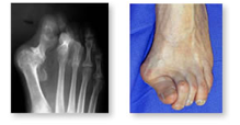 http://www.mdmercy.com/footandankle/conditions/bigtoe/images/straight.jpg